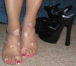 натерла ногу обувь